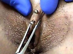 Perforación del capuchón del clítoris